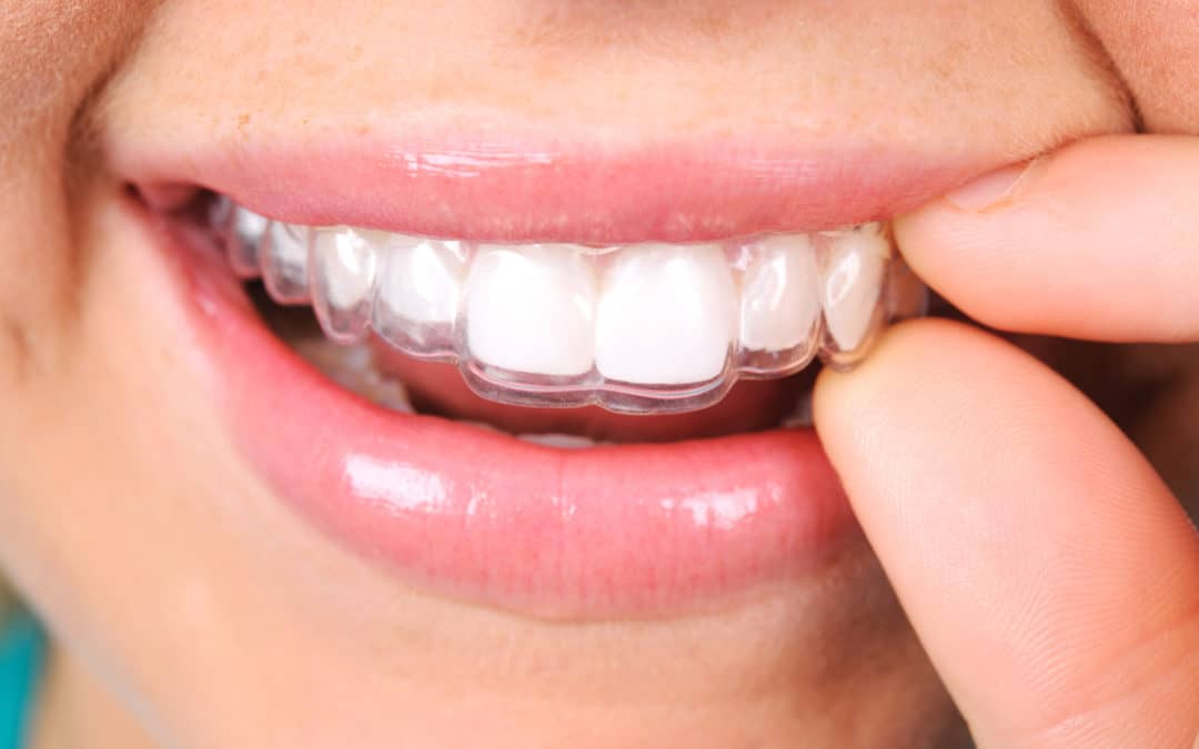 The pros and cons of Invisalign vs braces